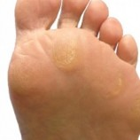CALLUS FOOT TREATMENT